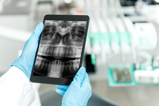 Digital X-rays Dental Technology from Cooley Smiles